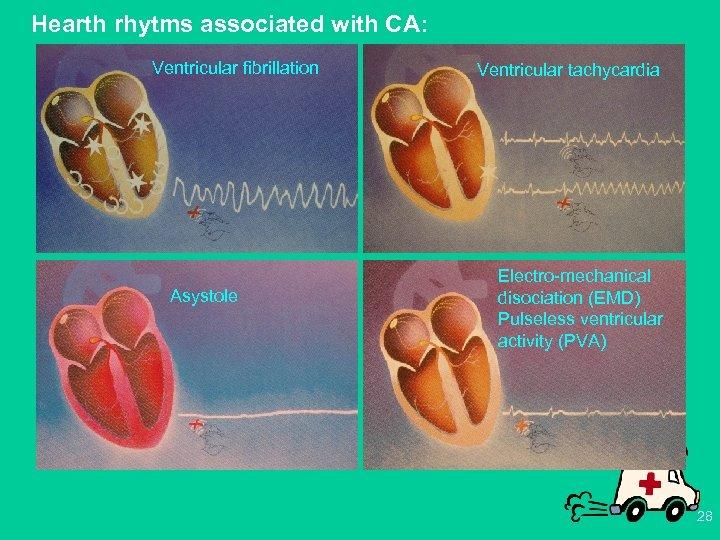 Hearth rhytms associated with CA: Ventricular fibrillation Asystole Ventricular tachycardia Electro-mechanical disociation (EMD) Pulseless