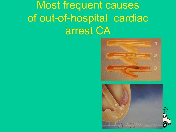 Most frequent causes of out-of-hospital cardiac arrest CA 3
