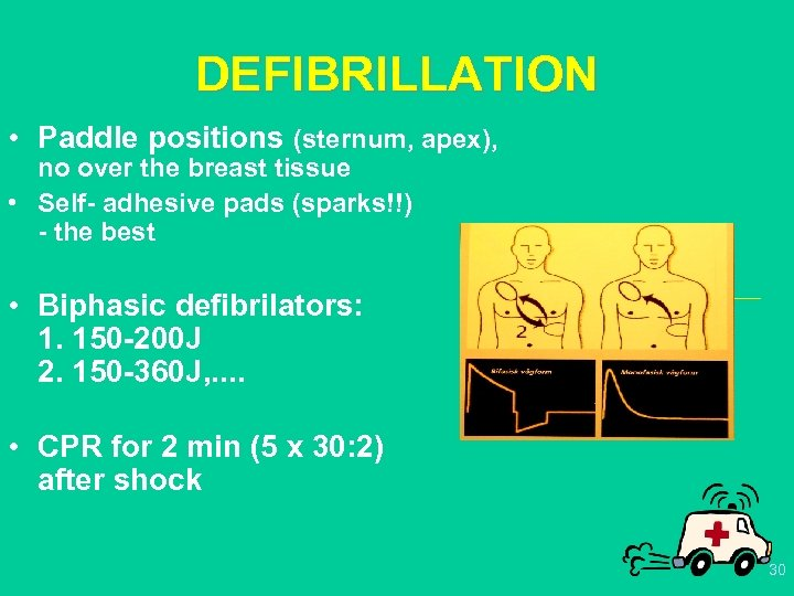 DEFIBRILLATION • Paddle positions (sternum, apex), no over the breast tissue • Self- adhesive