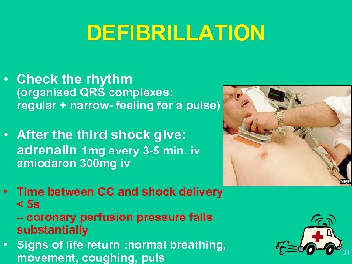 DEFIBRILLATION • Check the rhythm (organised QRS complexes: regular + narrow- feeling for a