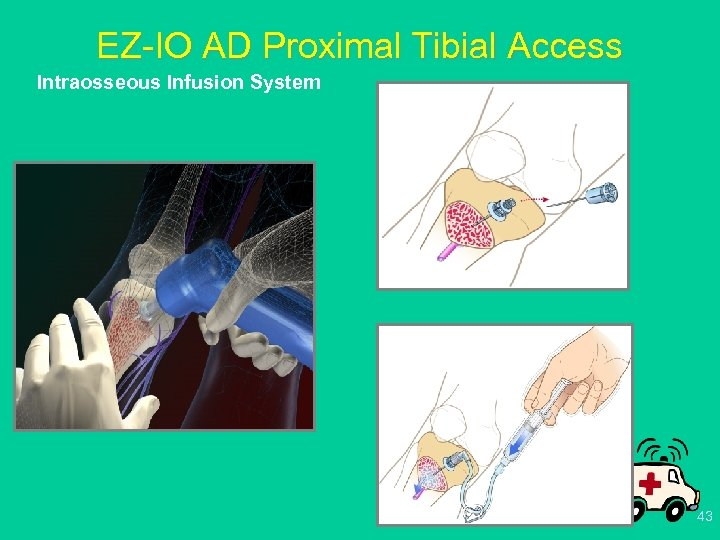 EZ-IO AD Proximal Tibial Access Intraosseous Infusion System 43