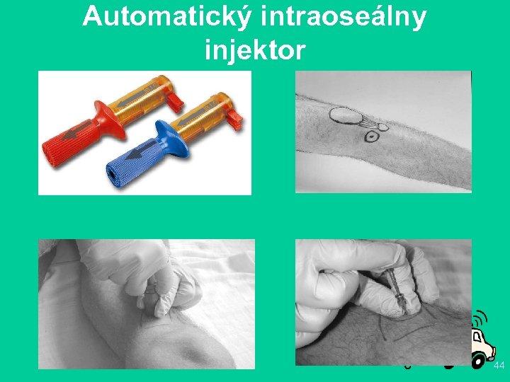 Automatický intraoseálny injektor 44