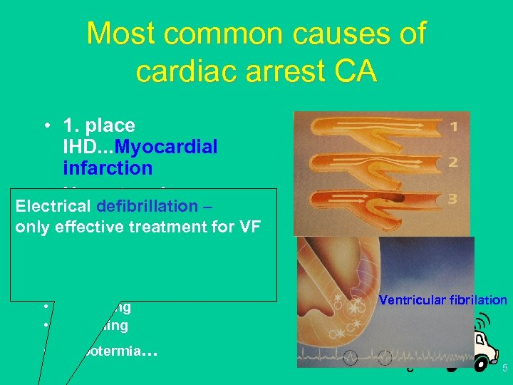 Most common causes of cardiac arrest CA • 1. place IHD. . . Myocardial