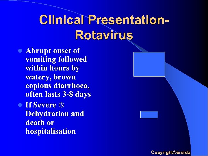 Clinical Presentation. Rotavirus Abrupt onset of vomiting followed within hours by watery, brown copious