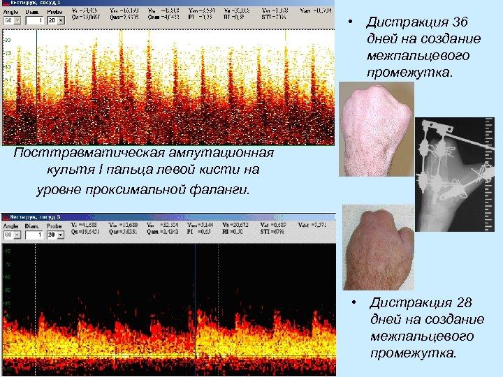 • Дистракция 36 дней на создание межпальцевого промежутка. Посттравматическая ампутационная культя I пальца