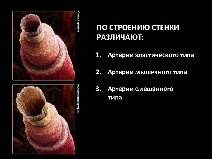 ПО СТРОЕНИЮ СТЕНКИ РАЗЛИЧАЮТ: 1. Артерии эластического типа 2. Артерии мышечного типа 3. Артерии