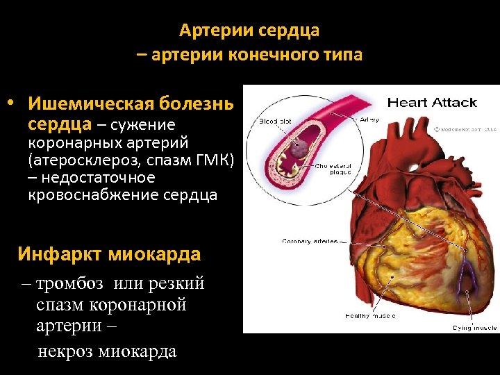Артерии сердца – артерии конечного типа • Ишемическая болезнь сердца – сужение коронарных артерий