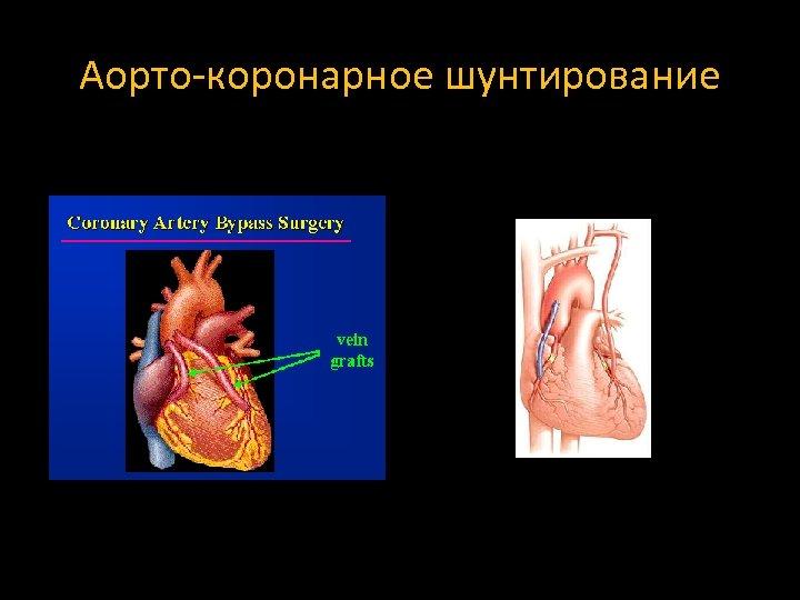 Аорто-коронарное шунтирование