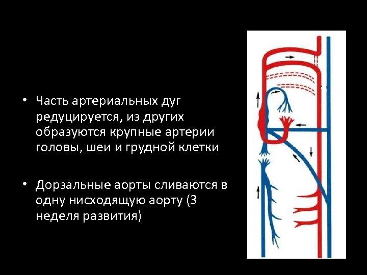 • Часть артериальных дуг редуцируется, из других образуются крупные артерии головы, шеи и