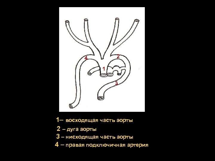 2 4 1 3 1– восходящая часть аорты 2 – дуга аорты 3 –