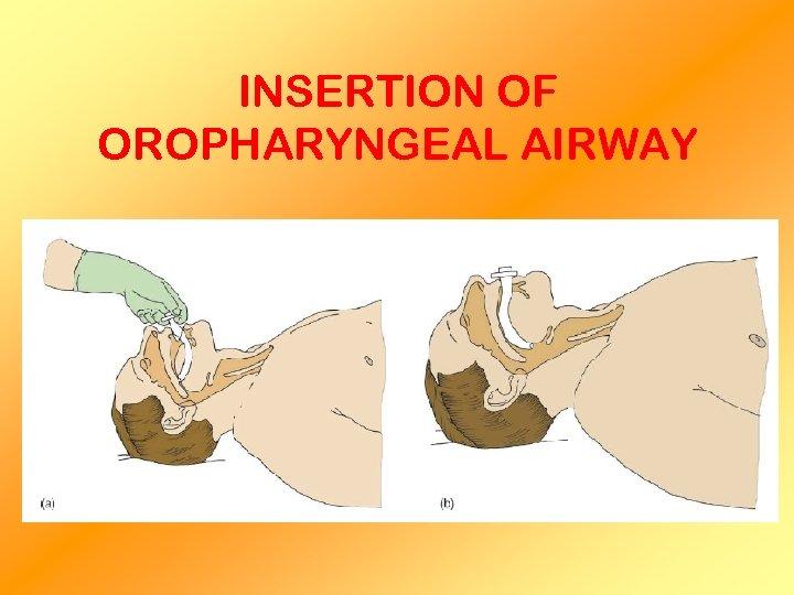 INSERTION OF OROPHARYNGEAL AIRWAY
