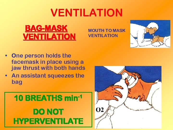 VENTILATION BAG-MASK VENTILATION • One person holds the facemask in place using a jaw