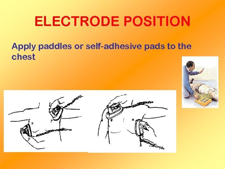 ELECTRODE POSITION Apply paddles or self-adhesive pads to the chest