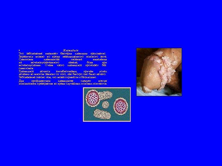 • Хламидиоз Это заболевание вызывает бактерия хламидия трахоматис. Заразиться можно во время незащищенного