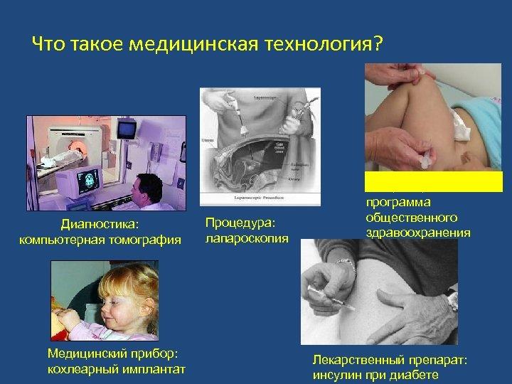 Что такое медицинская технология? Диагностика: компьютерная томография Медицинский прибор: кохлеарный имплантат Процедура: лапароскопия Вакцинация
