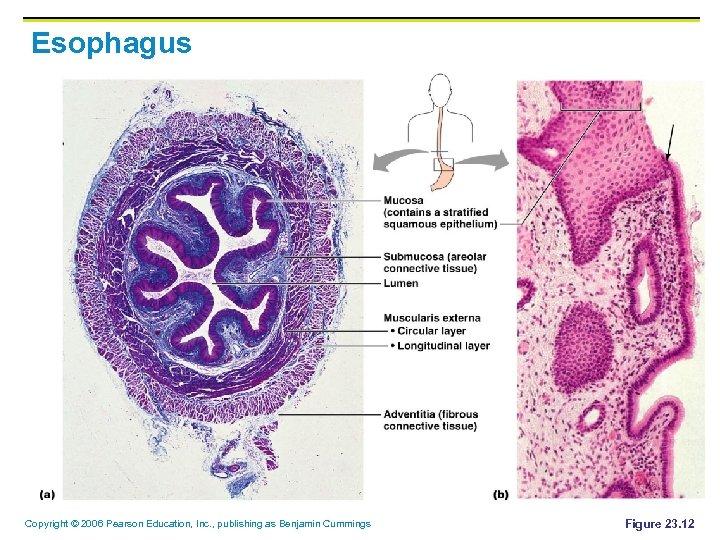 Esophagus Copyright © 2006 Pearson Education, Inc. , publishing as Benjamin Cummings Figure 23.