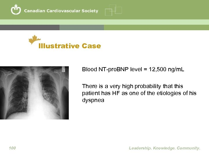 Illustrative Case Blood NT-pro. BNP level = 12, 500 ng/m. L There is a