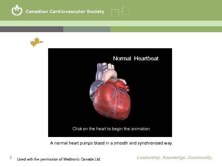 Normal Heartbeat Click on the heart to begin the animation. A normal heart pumps