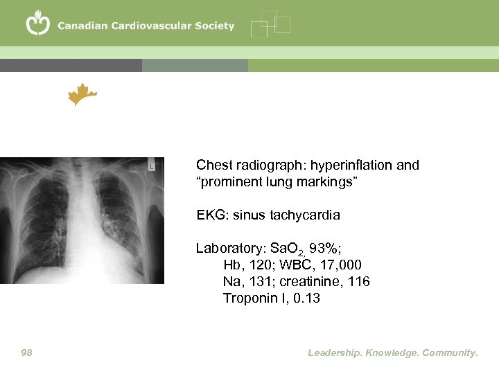 """Chest radiograph: hyperinflation and """"prominent lung markings"""" EKG: sinus tachycardia Laboratory: Sa. O 2,"""