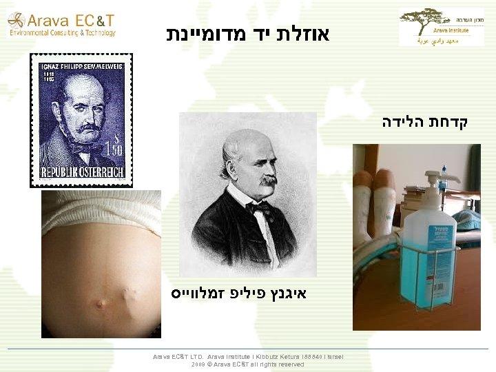 אוזלת יד מדומיינת קדחת הלידה איגנץ פיליפ זמלווייס Arava EC&T LTD. Arava Institute