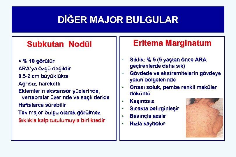 DİĞER MAJOR BULGULAR Eritema Marginatum Subkutan Nodül < % 10 görülür ARA'ya özgü değildir