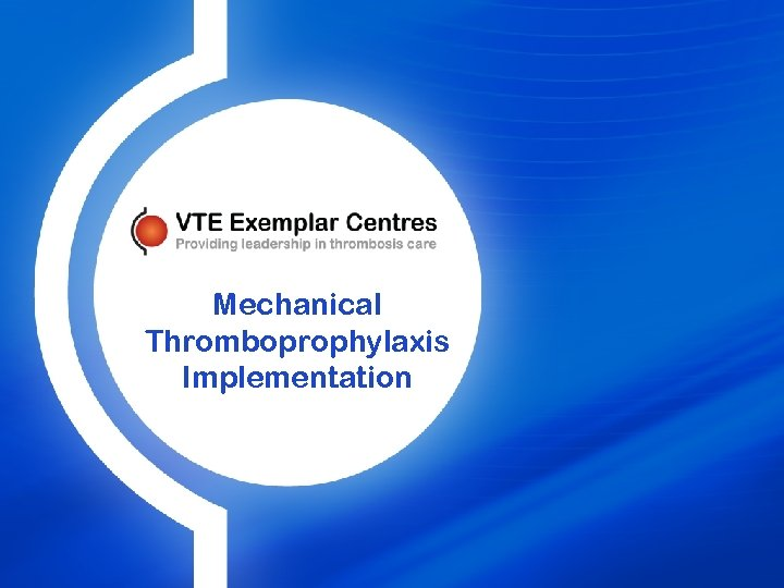 Mechanical Thromboprophylaxis Implementation