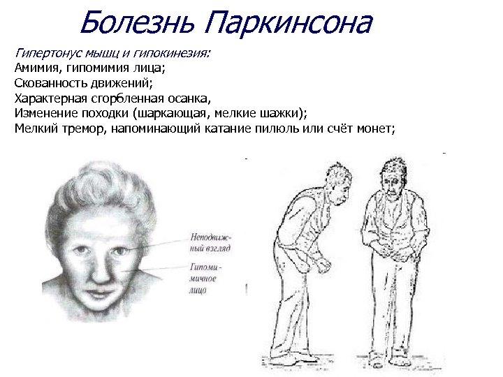 Болезнь Паркинсона Гипертонус мышц и гипокинезия: Амимия, гипомимия лица; Скованность движений; Характерная сгорбленная осанка,