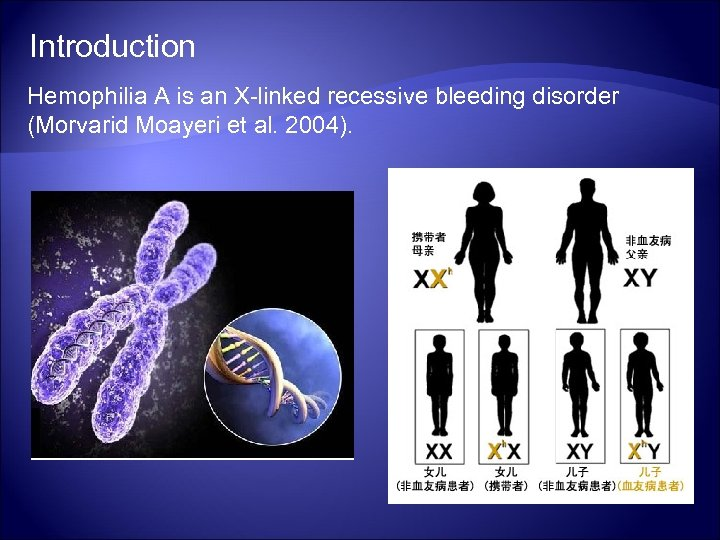 Introduction Hemophilia A is an X-linked recessive bleeding disorder (Morvarid Moayeri et al. 2004).