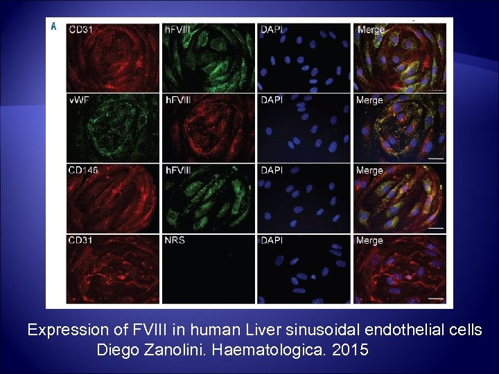 Expression of FVIII in human Liver sinusoidal endothelial cells Diego Zanolini. Haematologica. 2015