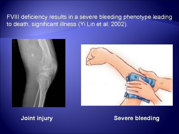 FVIII deficiency results in a severe bleeding phenotype leading to death, significant illness (Yi