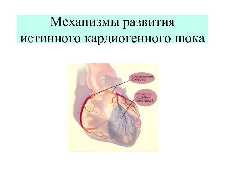 Механизмы развития истинного кардиогенного шока