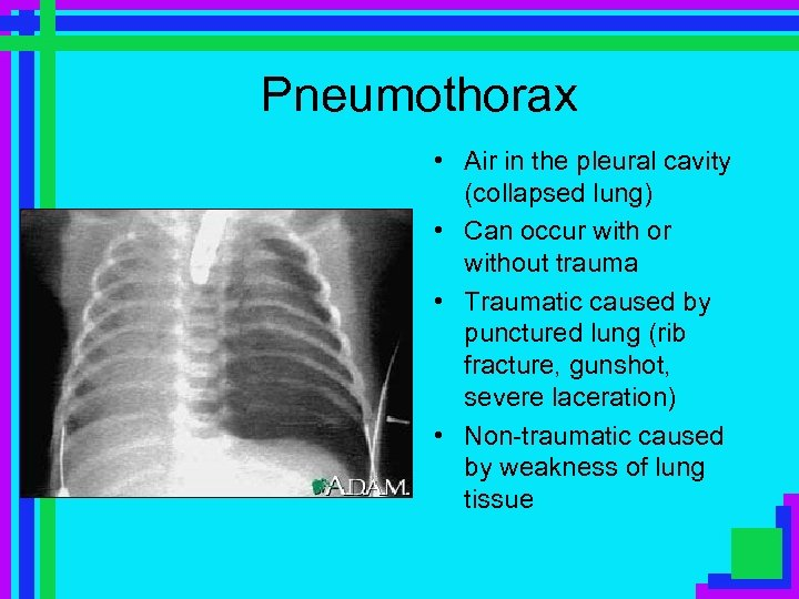 Pneumothorax • Air in the pleural cavity (collapsed lung) • Can occur with or
