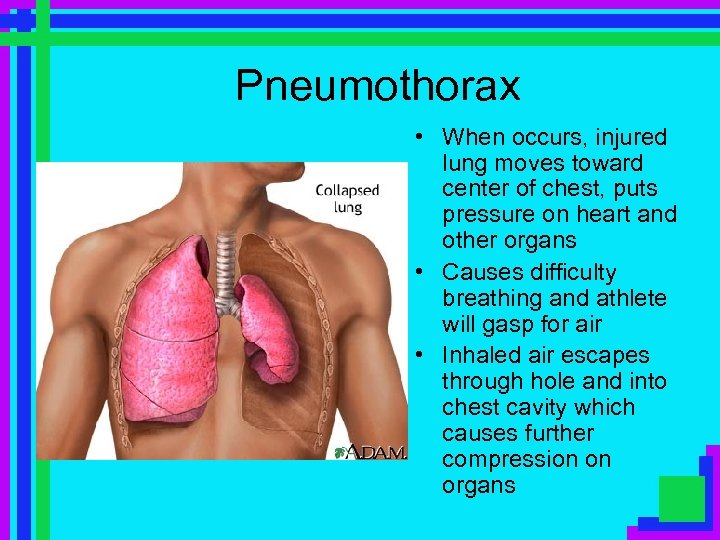 Pneumothorax • When occurs, injured lung moves toward center of chest, puts pressure on