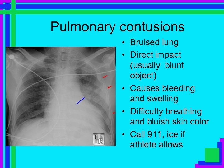 Pulmonary contusions • Bruised lung • Direct impact (usually blunt object) • Causes bleeding
