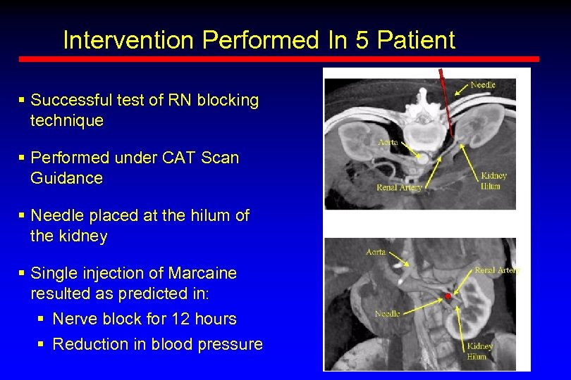 Intervention Performed In 5 Patient § Successful test of RN blocking technique § Performed