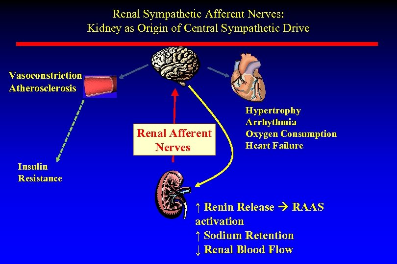 Renal Sympathetic Afferent Nerves: Kidney as Origin of Central Sympathetic Drive Vasoconstriction Atherosclerosis Renal