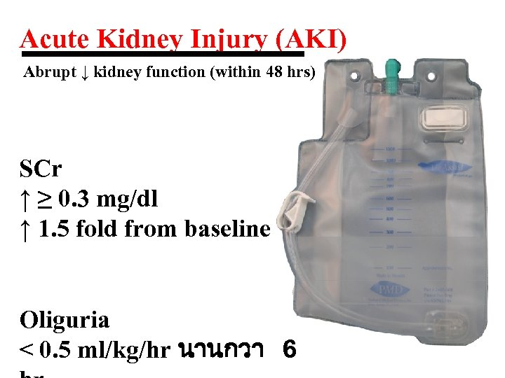 Acute Kidney Injury (AKI) Abrupt ↓ kidney function (within 48 hrs) SCr ↑ ≥