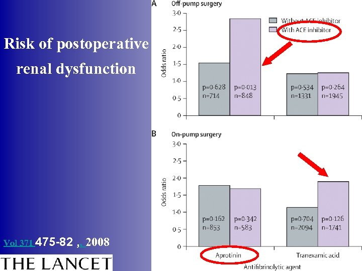 Risk of postoperative renal dysfunction Vol 371 475 -82 , , 2008