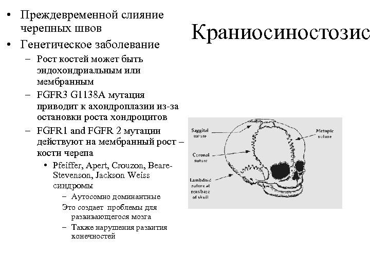 • Преждевременной слияние черепных швов • Генетическое заболевание – Рост костей может быть