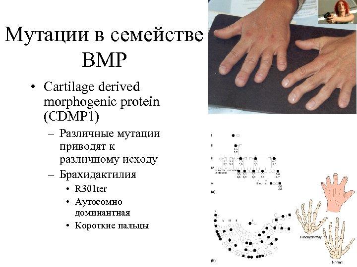 Мутации в семействе BMP • Cartilage derived morphogenic protein (CDMP 1) – Различные мутации