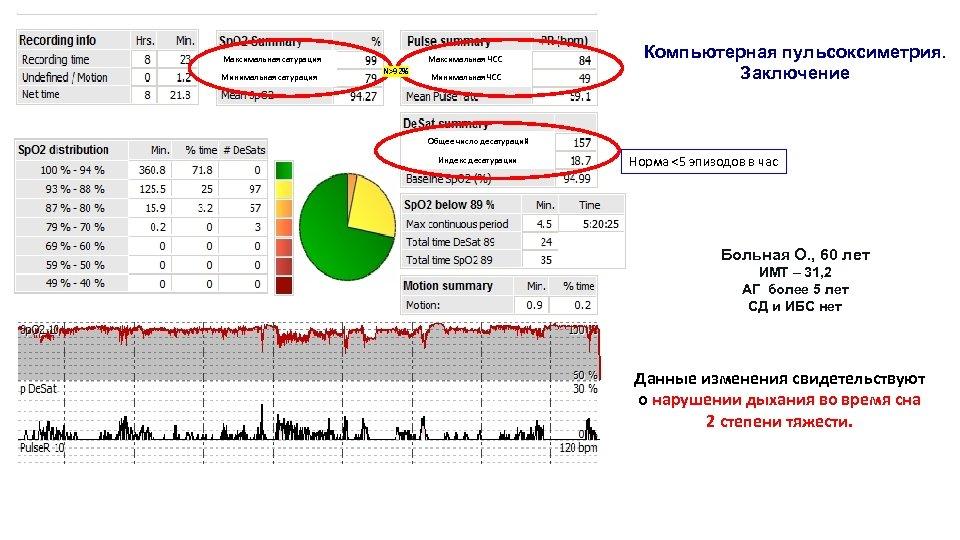 Максимальная сатурация Минимальная сатурация Максимальная ЧСС N>92% Минимальная ЧСС Компьютерная пульсоксиметрия. Заключение Общее число