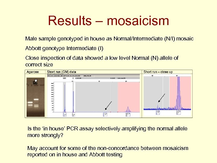 Results – mosaicism Male sample genotyped in house as Normal/Intermediate (N/I) mosaic Abbott genotype