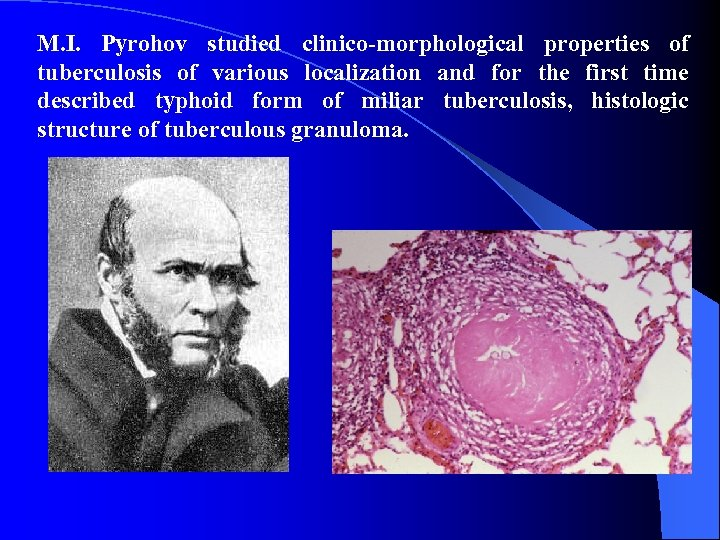 M. I. Pyrohov studied clinico-morphological properties of tuberculosis of various localization and for the