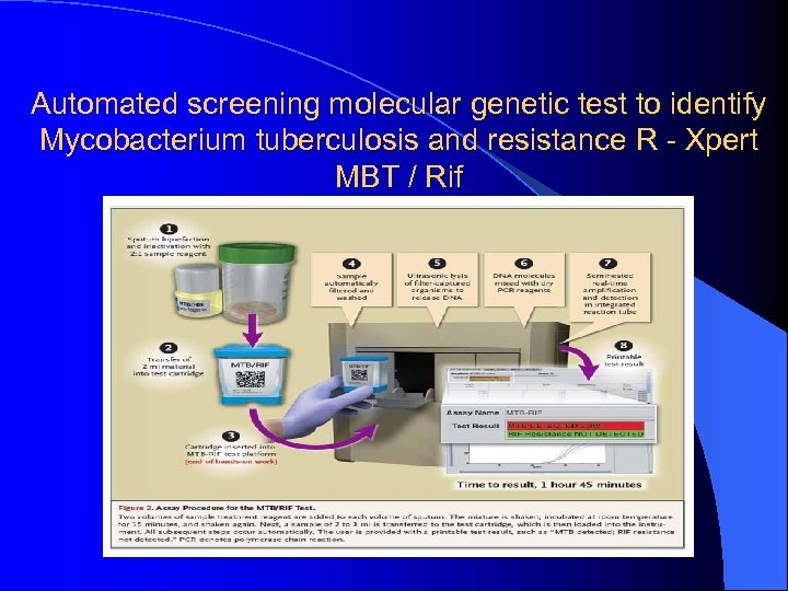 Automated screening molecular genetic test to identify Mycobacterium tuberculosis and resistance R - Xpert