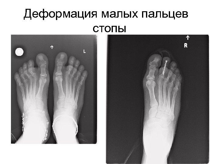 Деформация малых пальцев стопы