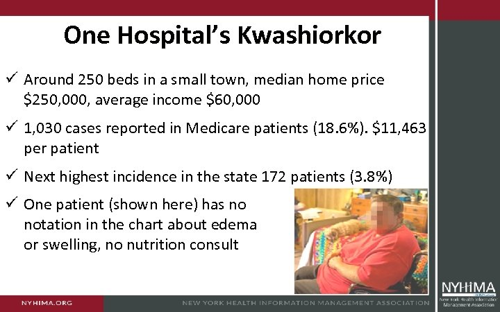 One Hospital's Kwashiorkor ü Around 250 beds in a small town, median home price