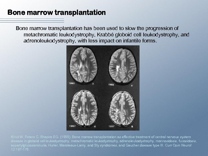 Bone marrow transplantation has been used to slow the progression of metachromatic leukodystrophy, Krabbé