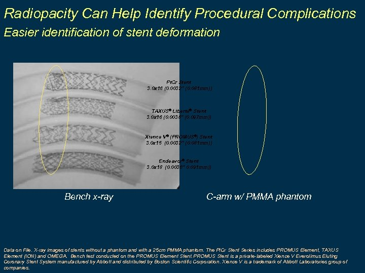 Radiopacity Can Help Identify Procedural Complications Easier identification of stent deformation Pt. Cr Stent