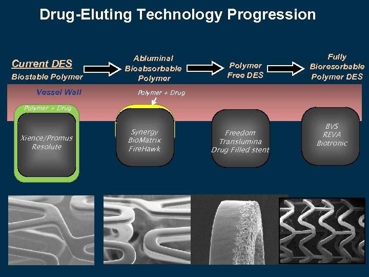 Drug-Eluting Technology Progression Current DES Biostable Polymer Vessel Wall Abluminal Bioabsorbable Polymer Free DES