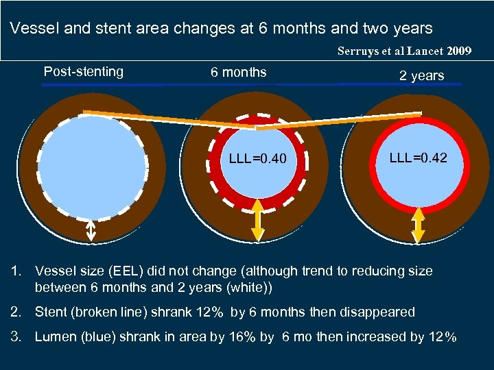 Vessel and stent area changes at 6 months and two years Serruys et al